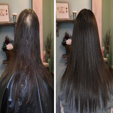 Micro ring extensions in thin hair